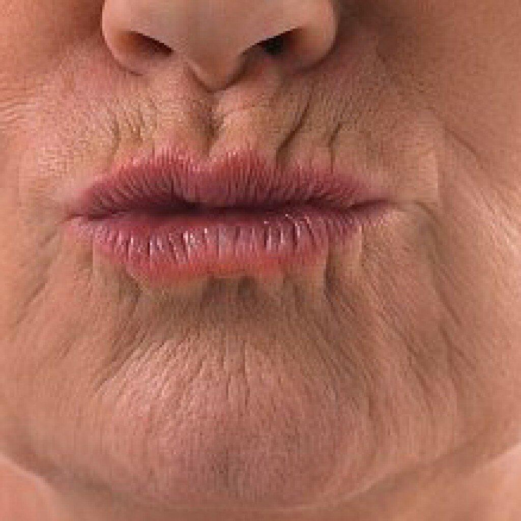 описать то, кисетные морщины над губами как убрать фото стали настоящим украшением