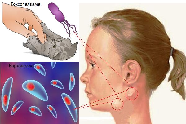 Лимфоузлы на лице: расположение, функции, причины воспаления