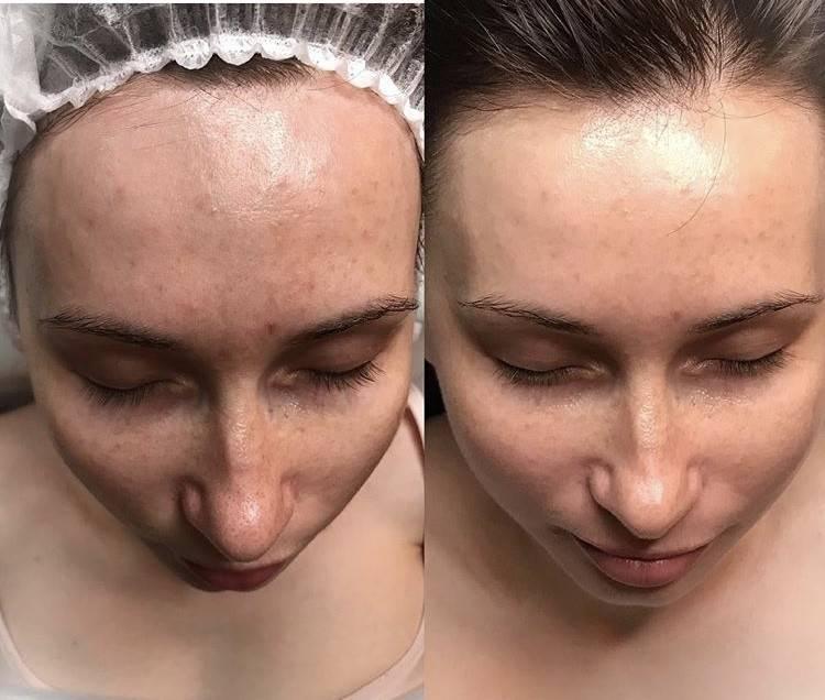 Максимум информации о тса-пилинге для лица. пилинг тса – отличное омоложение или вредная процедура