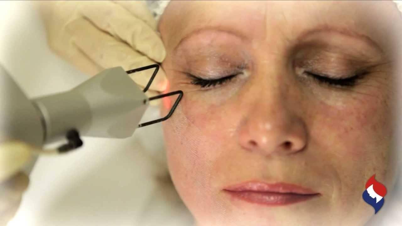 Рекомендации специалистов на период реабилитации после блефаропластики