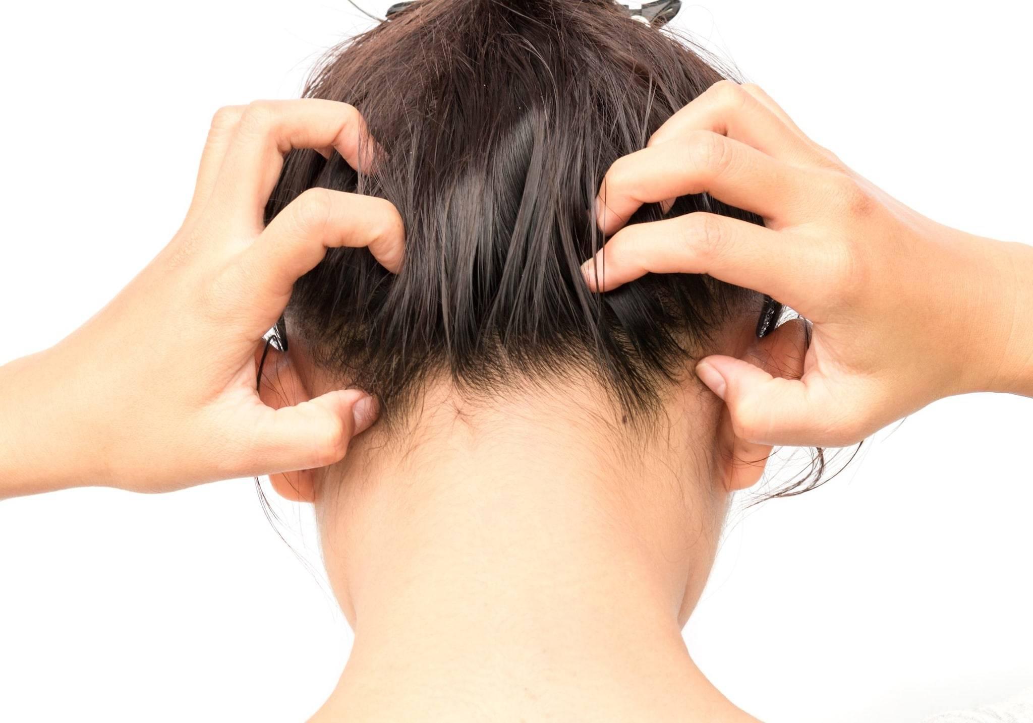 Шелушение кожи головы: от чего возникает и как избавиться