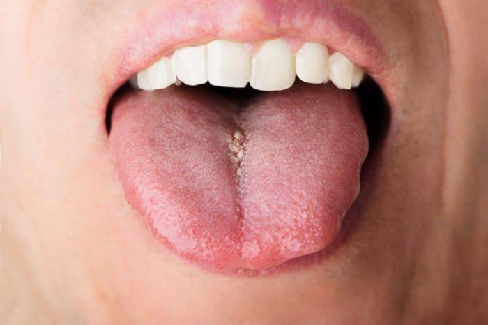 Малиновый язык у взрослых и детей: о каких заболеваниях свидетельствует симптом