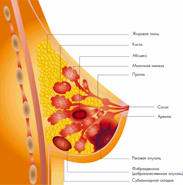 Народные средства от кисты в молочной железе