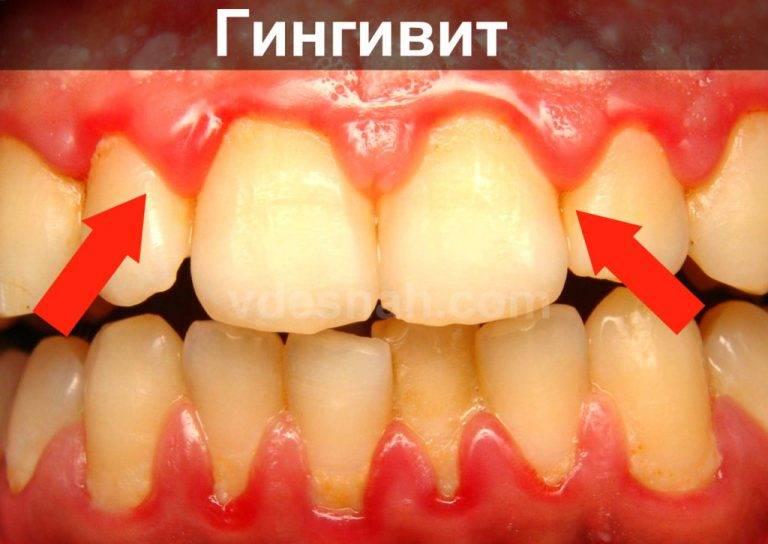 Что делать когда появляется неприятный запах изо рта и кровоточат дёсны