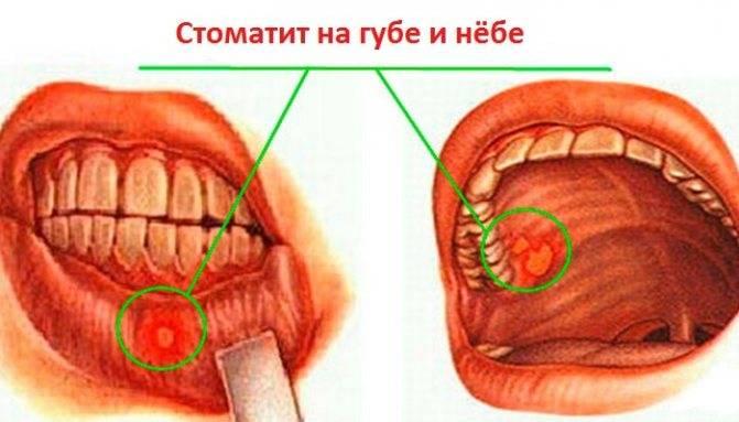 Прикусила щеку образовалась язвочка изнутри: чем и как лечить