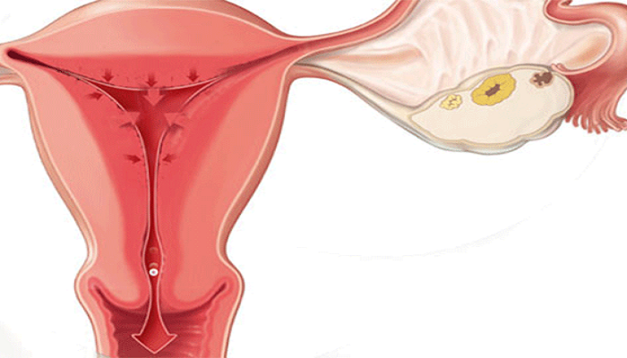 Молочница в период овуляции — характерные причины и методы лечения