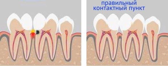 Культевая вкладка и коронка или пломба на депульпированный зуб?
