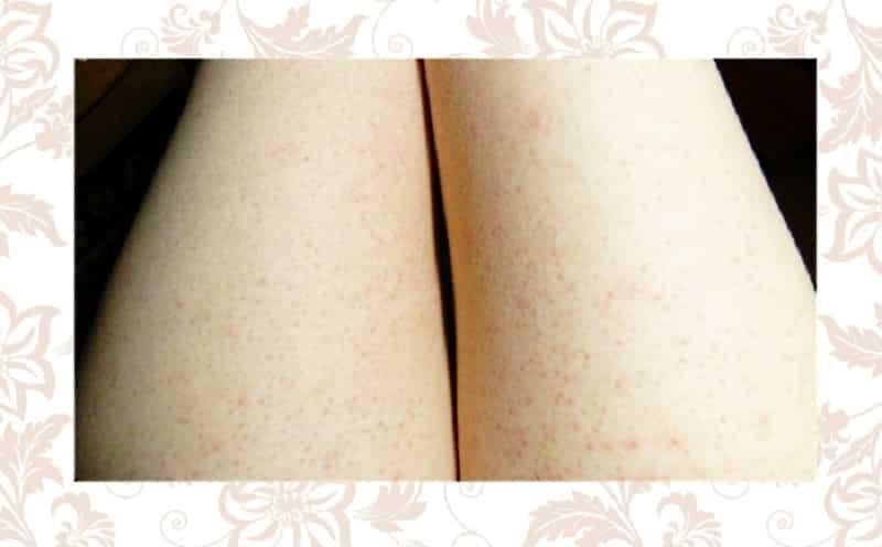 Как снять раздражение на ногах после бритья: аптечные и домашние средства