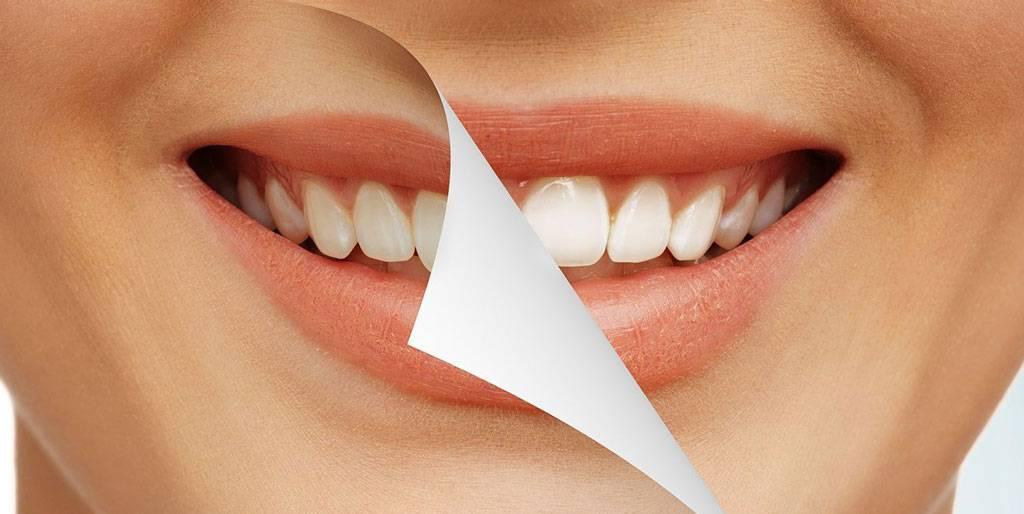 Вредно ли отбеливание зубов для эмали
