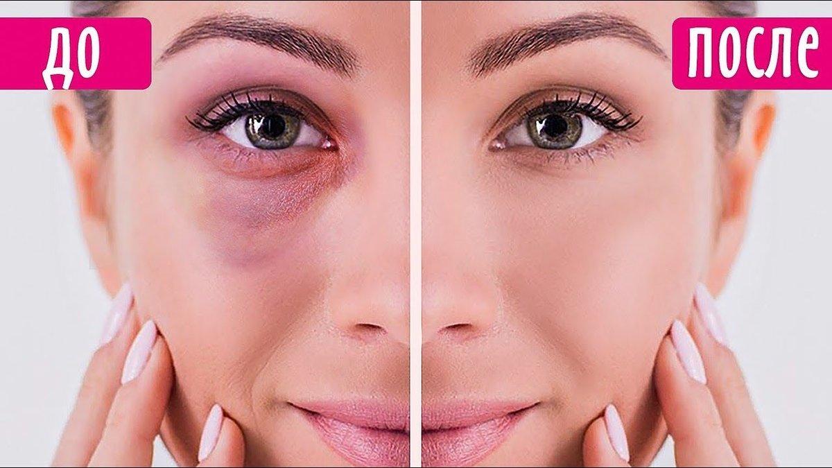 Синяки под глазами у женщин – почему возникают и как убрать в домашних условиях?