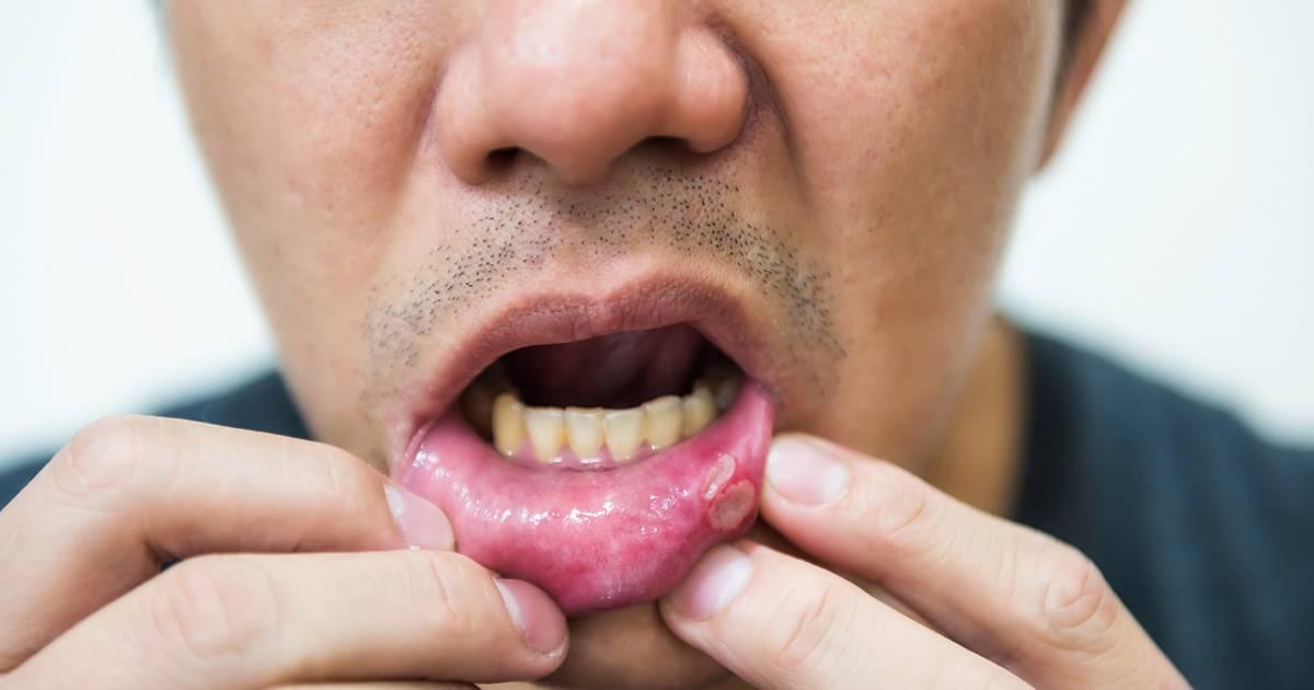 Чем лечить молочницу во рту у взрослых лучше всего?