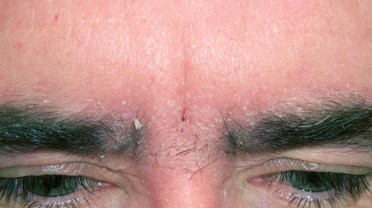 Почему шелушатся брови у мужчин. шелушение кожи на бровях и под ними — причины и лечение