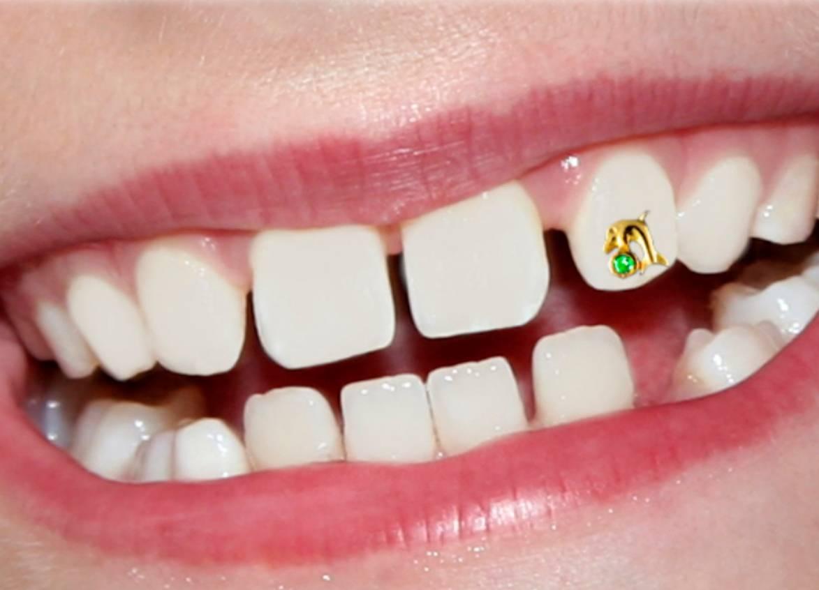 Модно ли устанавливать стразы на зубах, кому подойдет данная процедура