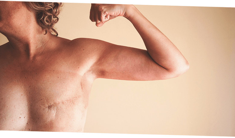 Рак вылечили, а грудь испортили: фото после реконструкции груди