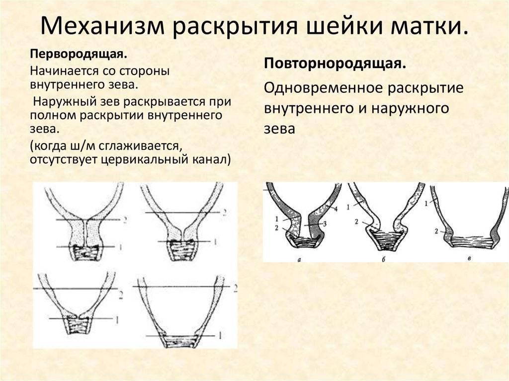 Роды раскрытие шейки матки