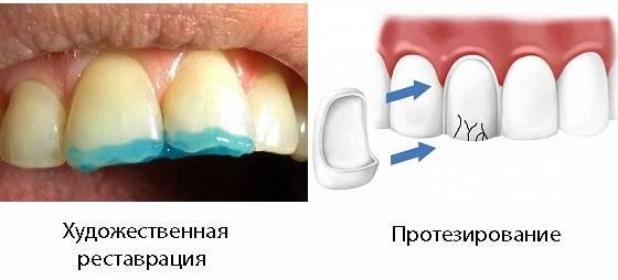 Почему у взрослого человека начинают разрушаться и крошиться зубы: причины проблемы и что с этим делать?