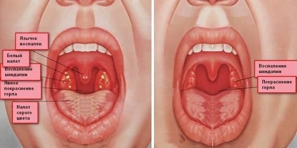 Прыщики в горле: причины появления и методы лечения