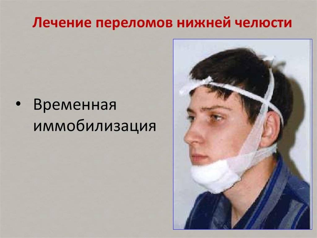 Перелом челюсти может быть очень опасен