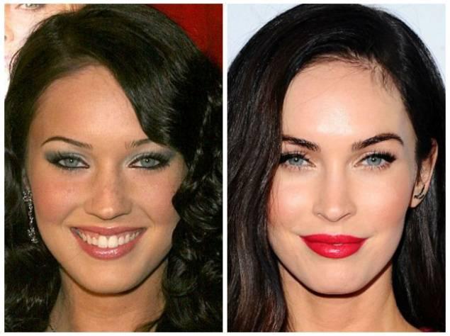 Топ-8 голливудских звезд до и после пластики