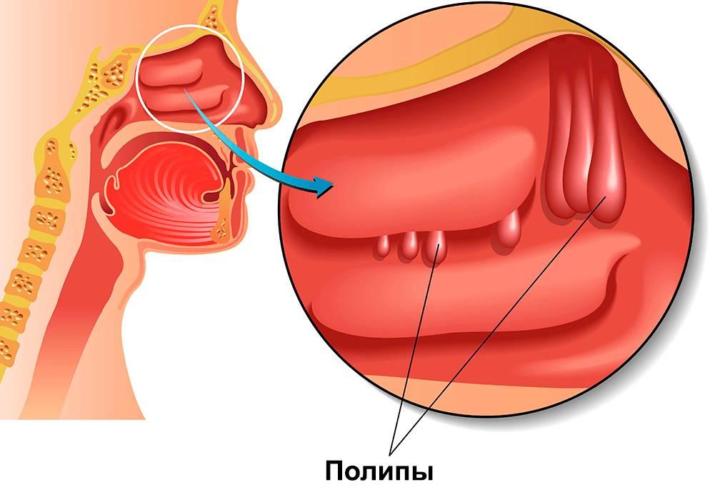 Лечение и удаление полипов в носу