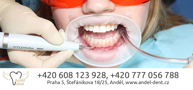 Ультразвуковая чистка зубов: особенности и стоимость