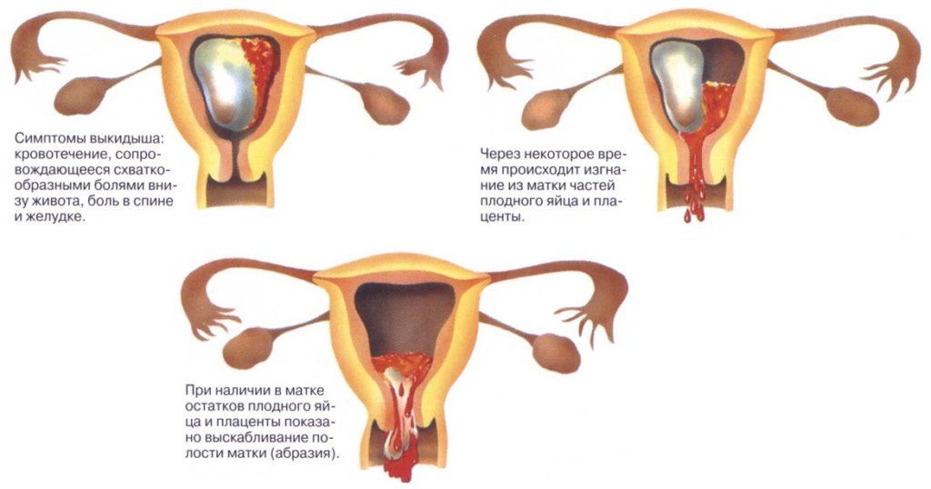 Месячные после медикаментозного аборта