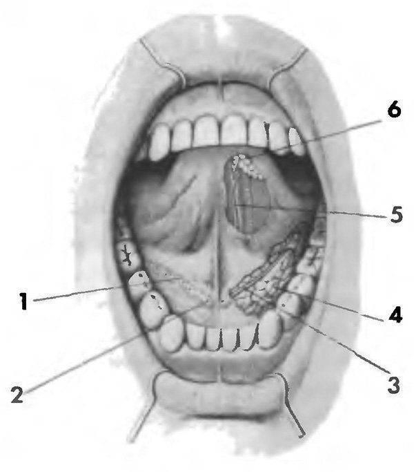 Камни в слюнной железе — основные симптомы, причины и современные способы лечения