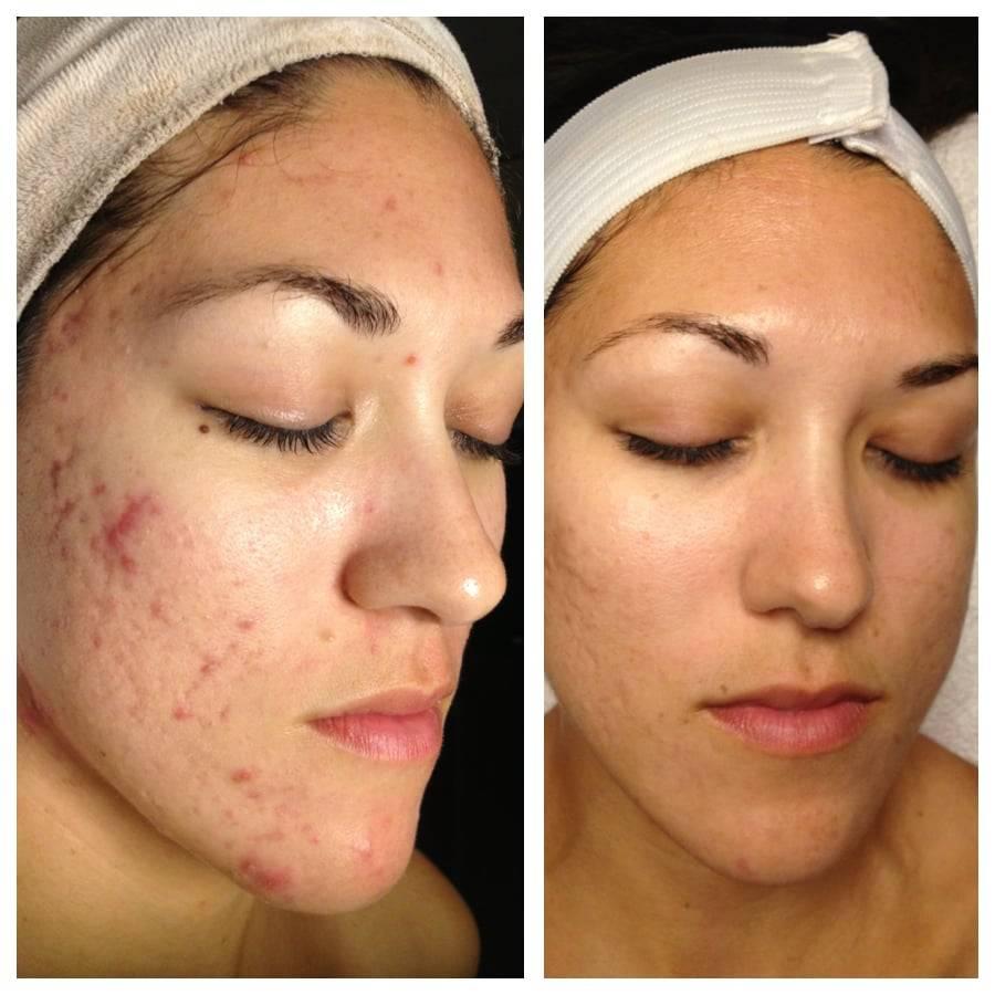 Можно ли краситься после чистки лица — советы косметологов