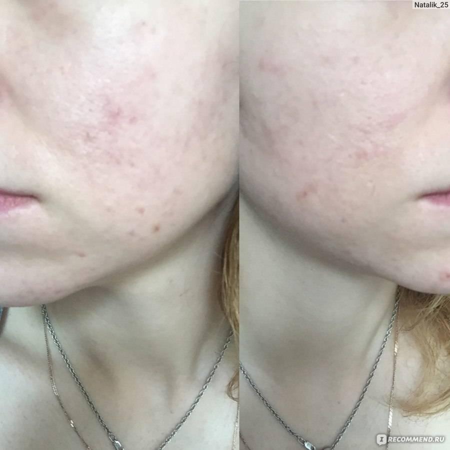 Лечение жидким азотом кожи лица