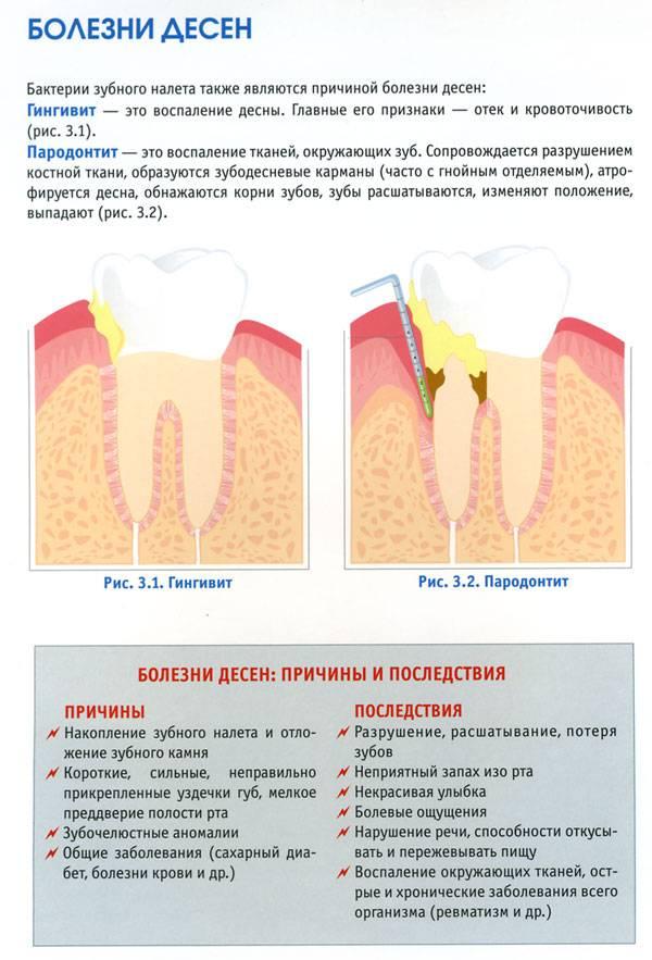 Средства от кровоточивости дёсен, сопровождаемой неприятным запахом