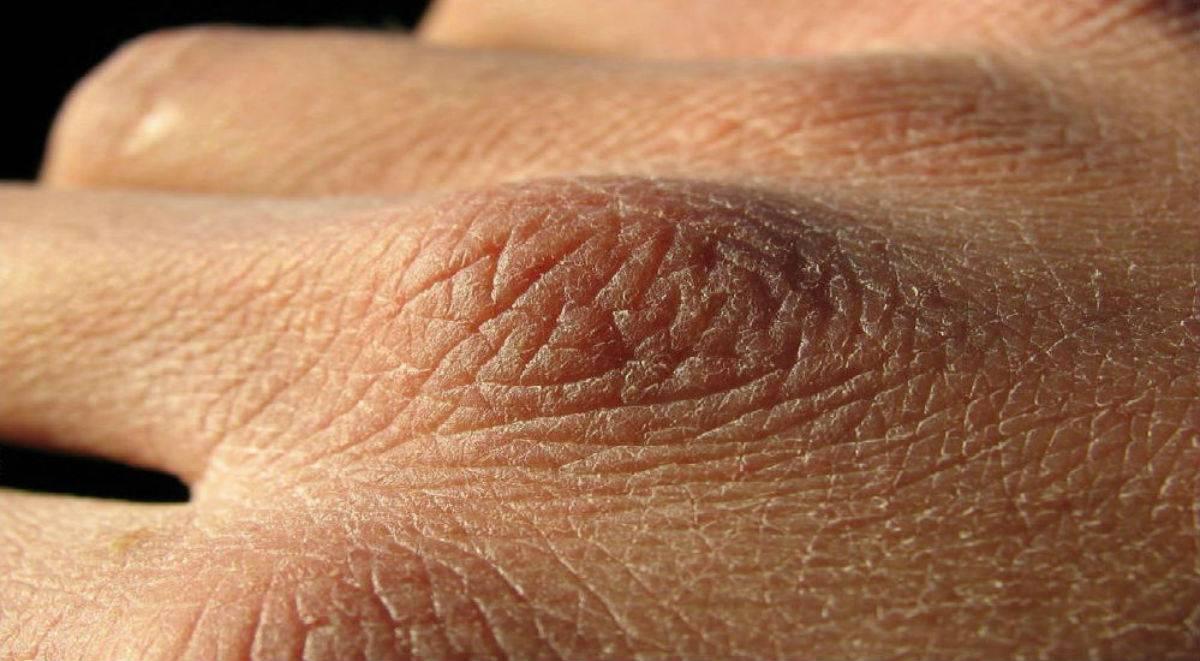 Шелушение на локтях: фото, причины, лечение
