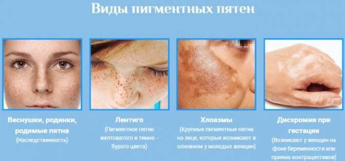 Как убрать пигментные пятна на лице: 3 способа, 7 косметических средств, 6 народных рецептов