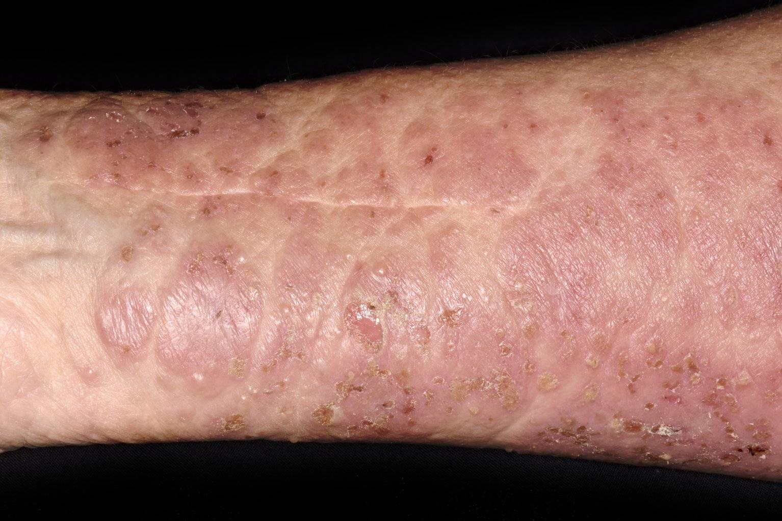 Буллезный дерматит: признаки, фото, методы лечения