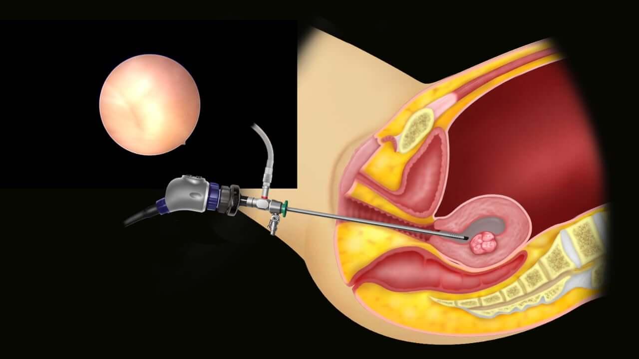 Кровотечение после выскабливания полости матки