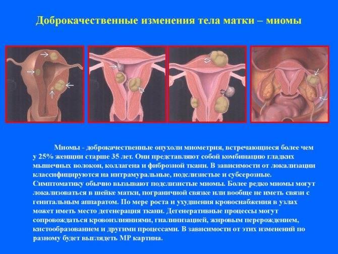 Миома матки небольших размеров в сочетании с эндометриозом, симптомы и лечение