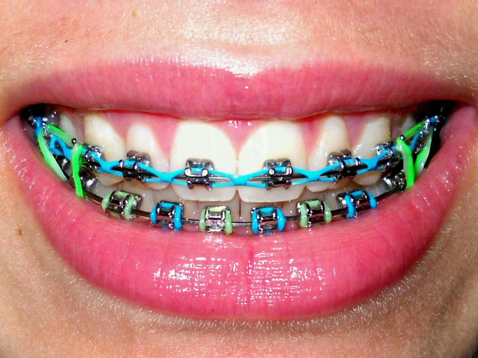 Лигатурные и безлигатурные системы брекетов: металлические, керамические и сапфировые конструкции