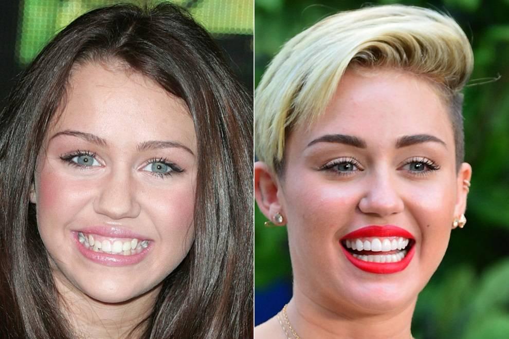 Делаем белые зубы как у звезд