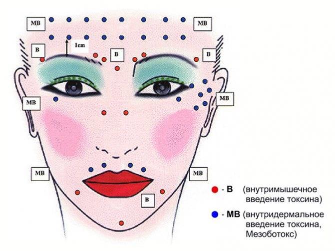 Мезоботокс под глаза: способ избавиться от мелких морщин