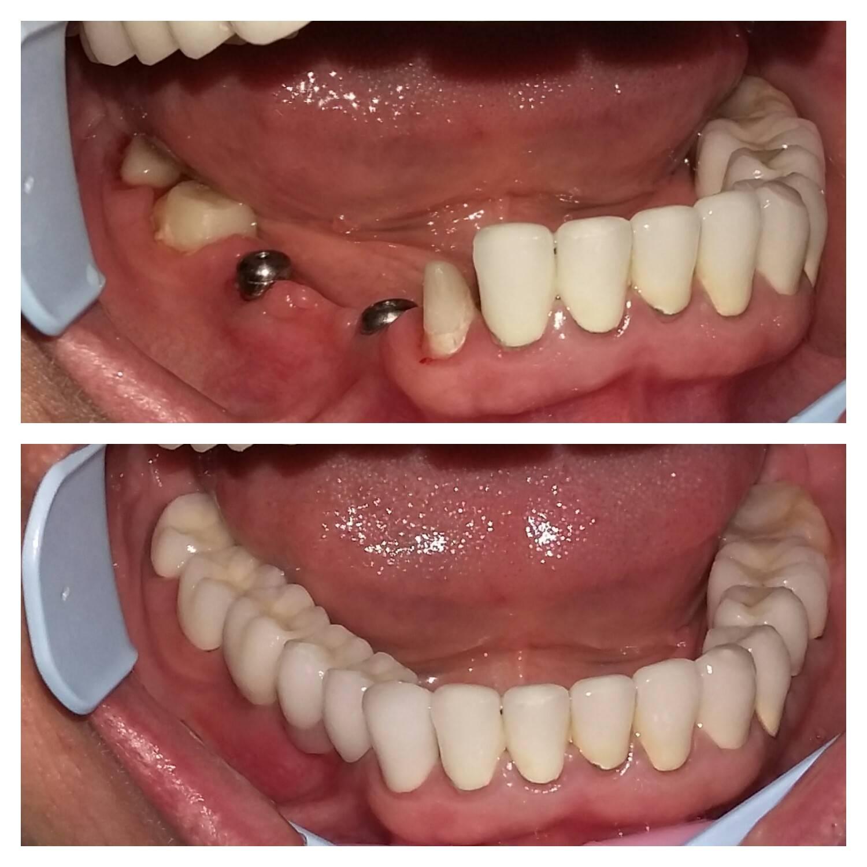 Протезирование зубов без обточки: виды, преимущества, цены
