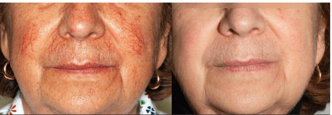 Как лечить купероз лица (кожи) народными средствами