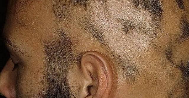 Причины, симптомы, стадии гнездной алопеции у женщин, и как можно остановить выпадение волос