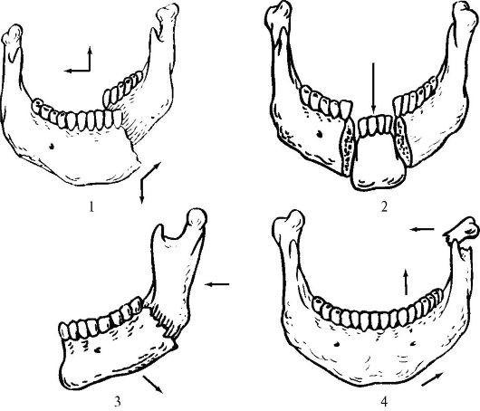 Неогнестрельные переломы верхней и нижней челюсти. классификация неогнестрельных переломов челюстей