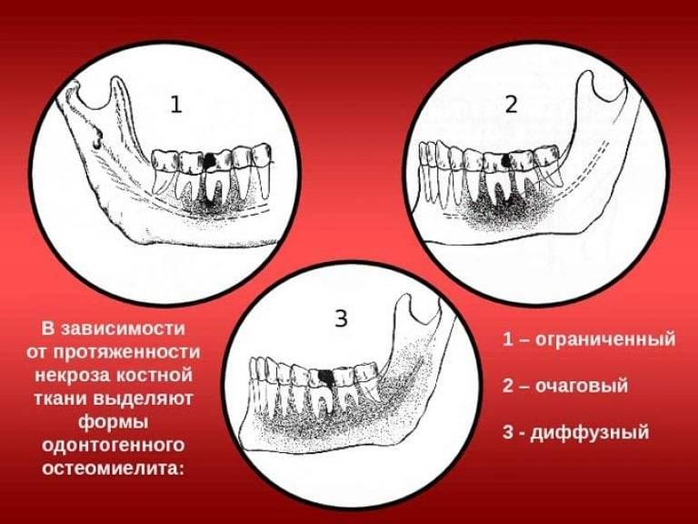 Остеомиелит челюсти: симптомы, диагностика, лечение