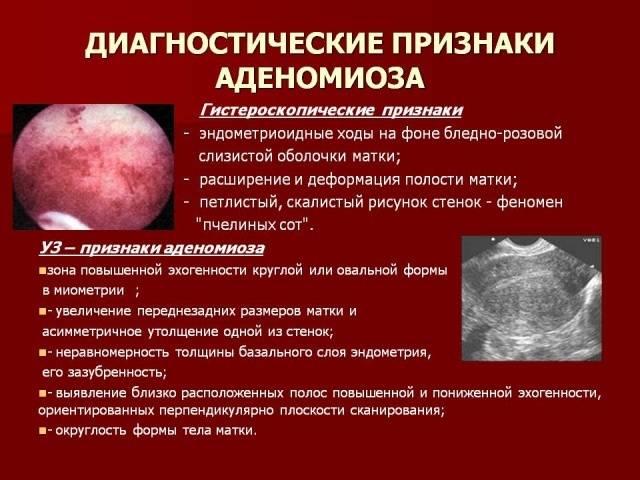 Эндометриоз 1, 2, 3, 4-й степени: стадии, симптомы и лечение