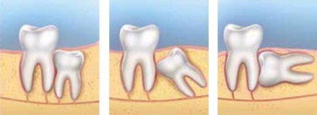Удаление корня разрушенного или гнилого зуба: больно ли, процесс удаления
