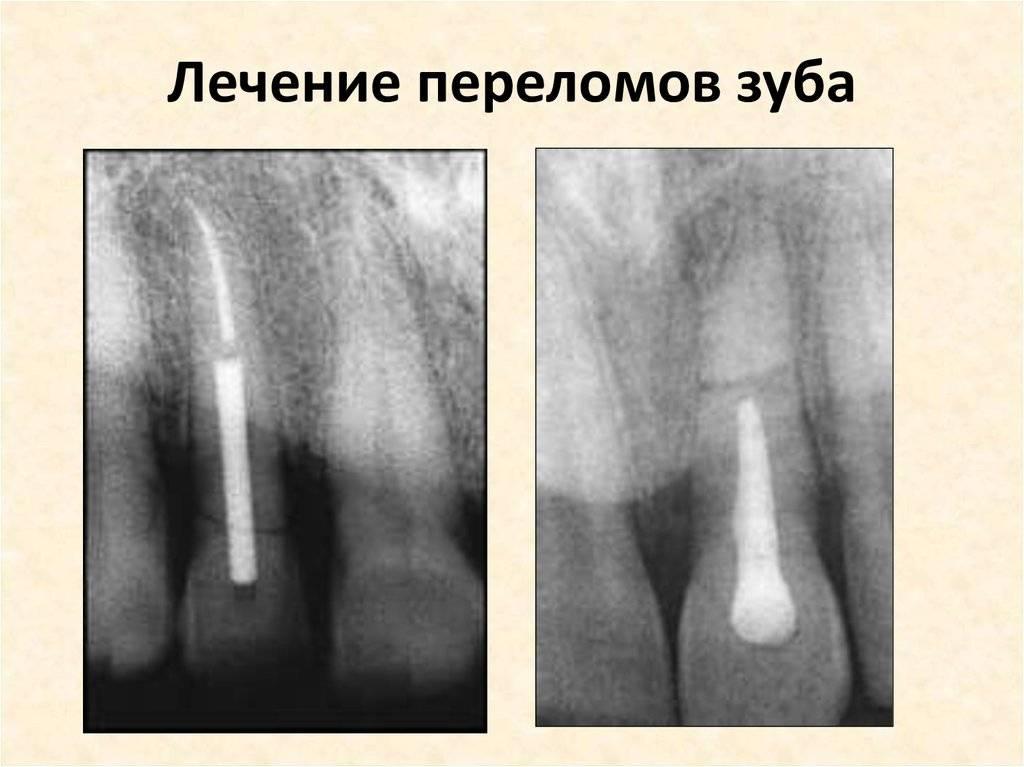 Все о переломе корня зуба