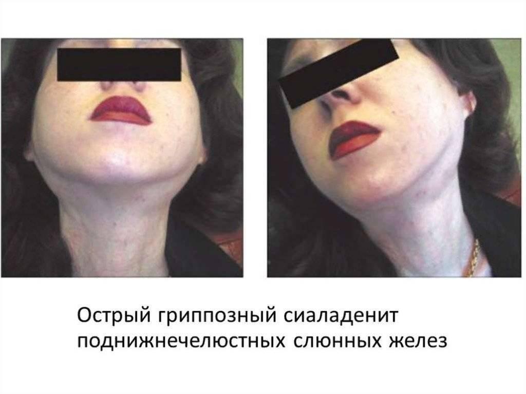 Операции при опухоли слюнной железы