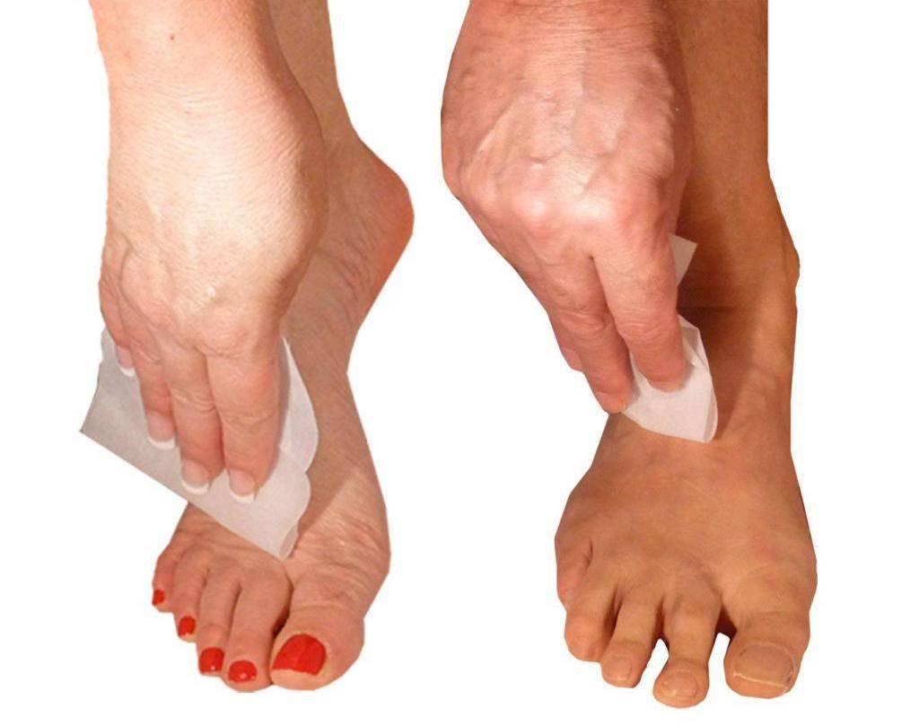 Лучшие методы лечения гипергидроза ног: питание, домашняя аптечка, медицина