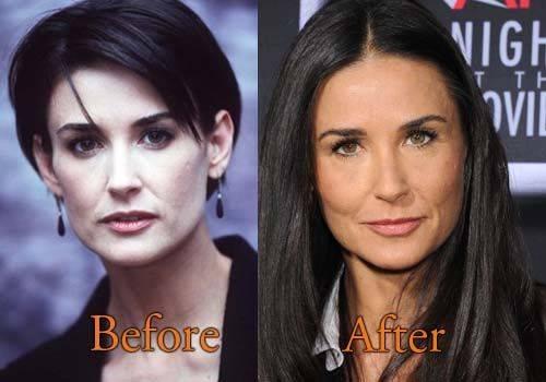 Рене зеллвегер: до и после пластики. неудачная пластика лица