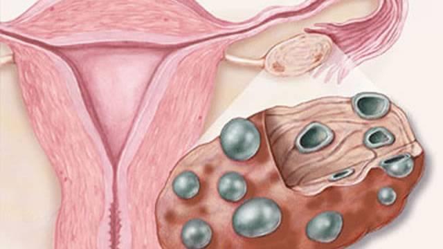Как повысить овариальный резерв яичников